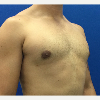 Male Breast Reduction after 3221268
