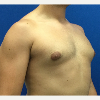 Male Breast Reduction before 3221268