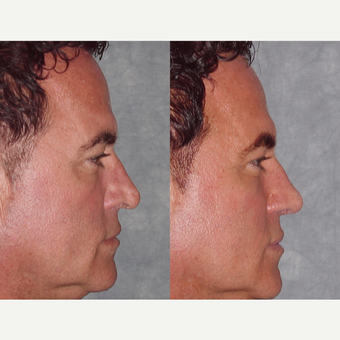 45-54 year old man treated with Revision Rhinoplasty after 3224085