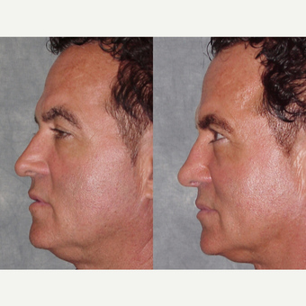 45-54 year old man treated with Revision Rhinoplasty before 3224085