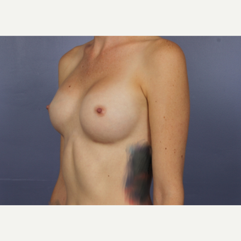 Breast Augmentation after 3663787