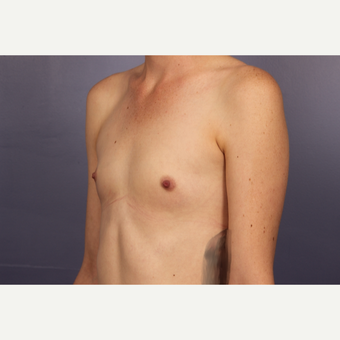Breast Augmentation before 3663787