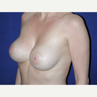 35-44 year old woman treated with Breast Implants after 3727068