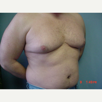 25-34 year old man treated with Male Breast Reduction before 3298130