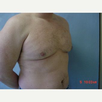 25-34 year old man treated with Male Breast Reduction after 3298130