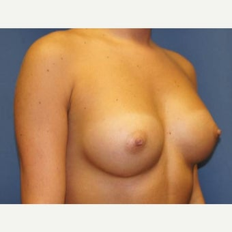 Young, very athletic woman, who underwent augmentation with 250cc silicone implants 1669658