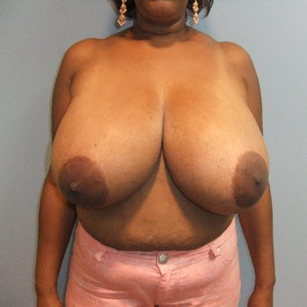 35-44 year old woman treated with Breast Reduction before 2141773