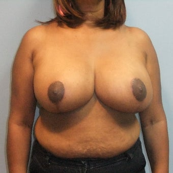 35-44 year old woman treated with Breast Reduction after 2141773