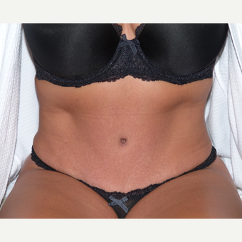 35-44 year old woman treated with Tummy Tuck after 3595824