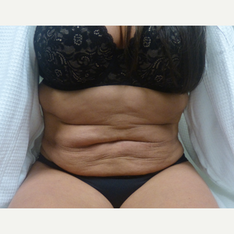 35-44 year old woman treated with Tummy Tuck before 3595824