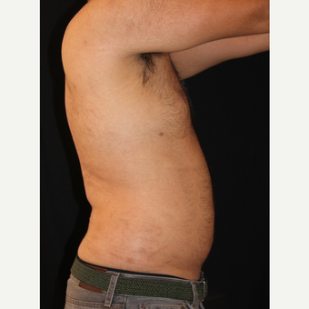 25-34 year old man treated with Liposuction after 3827830