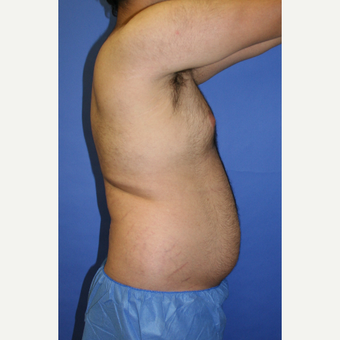 25-34 year old man treated with Liposuction before 3827830