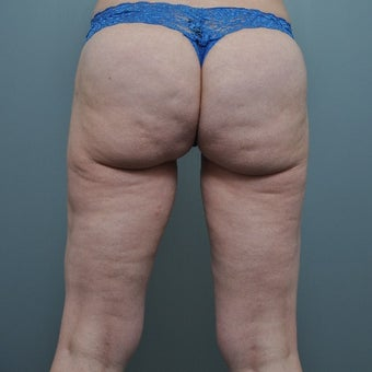 35-44 year old woman treated with Cellulite Treatment before 1539683