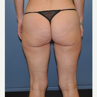 35-44 year old woman treated with Cellulite Treatment after 1539683