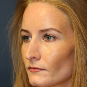 35-44 year old woman treated with Rhinoplasty before 3559722