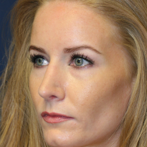 35-44 year old woman treated with Rhinoplasty after 3559722