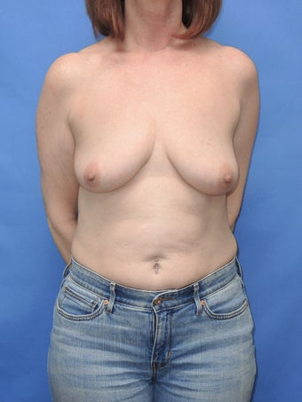 55 year old for breast lift with implant before 1169670