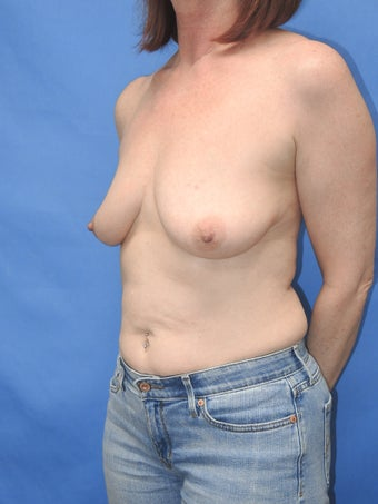 55 year old for breast lift with implant 1169670