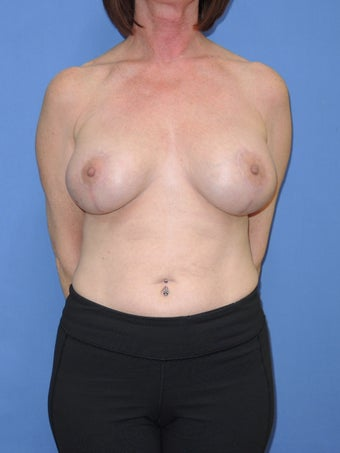 55 year old for breast lift with implant after 1169670