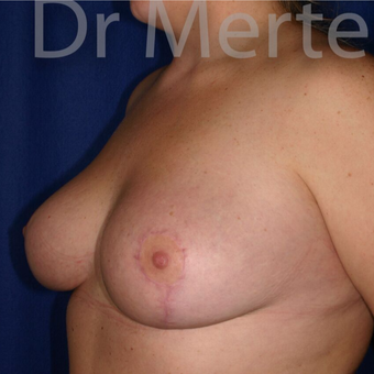 Breast Reduction after 3648484