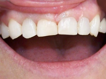 Bonding to Fix Chipped Front Tooth Before & After Photo after 996266