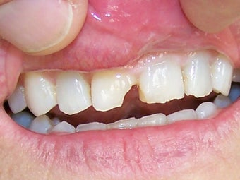 Bonding to Fix Chipped Front Tooth Before & After Photo before 996266