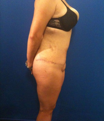 Hourglass Tummy Tuck by Dr. Wilberto Cortes 371928