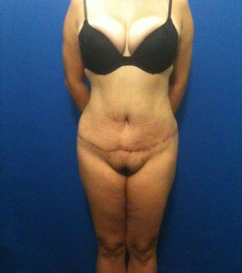 Hourglass Tummy Tuck by Dr. Wilberto Cortes after 371928