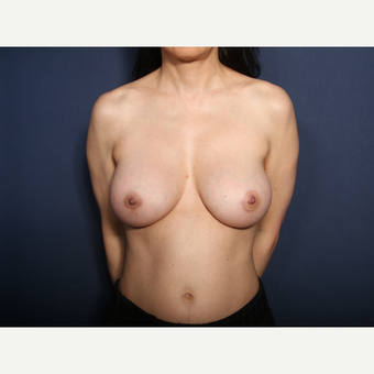 55-64 year old woman treated with Breast Implant Revision (view 1 of 2) after 3129524