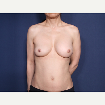55-64 year old woman treated with Breast Implant Revision (view 1 of 2) before 3129524