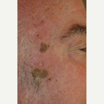 65-74 year old man treated with Age Spots Treatment before 1706433