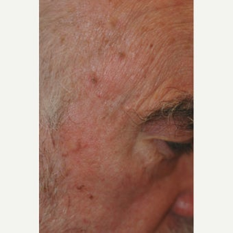 65-74 year old man treated with Age Spots Treatment after 1706433