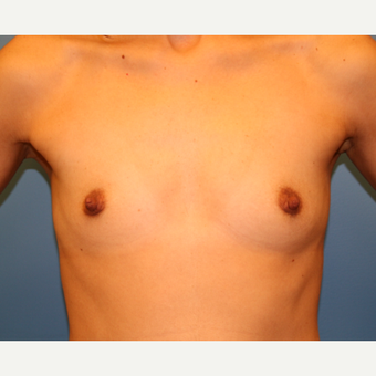 26 year old woman treated with Breast Augmentation before 3482746