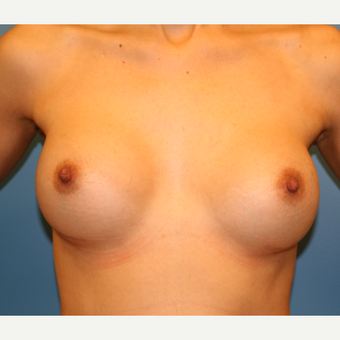 26 year old woman treated with Breast Augmentation after 3482746