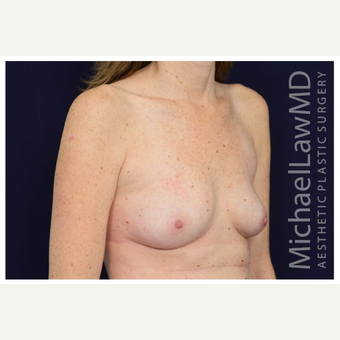 35-44 year old woman treated with Breast Implant Revision after 3259001