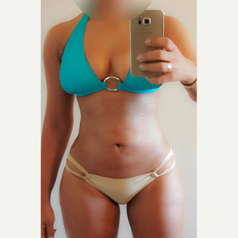 25-34 year old woman treated with Liposuction after 3825823
