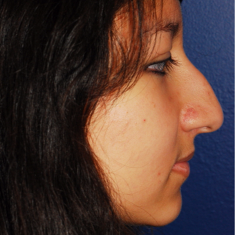 18-24 year old woman treated with Rhinoplasty before 3624057