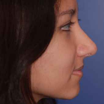 18-24 year old woman treated with Rhinoplasty after 3624057