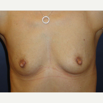 35-44 year old woman treated with Breast Augmentation before 3069812