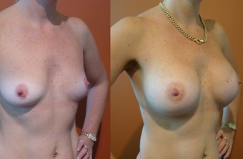 Breast Implants before 974226