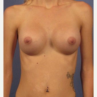 Breast Augmentation, 450cc High Profile, Dual Plane, Inframammary incision after 1940670