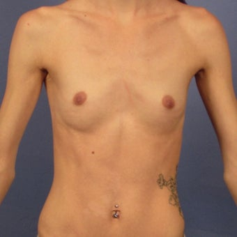 Breast Augmentation, 450cc High Profile, Dual Plane, Inframammary incision before 1940670