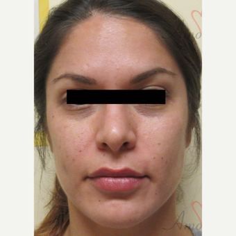25-34 year old woman treated with Eye Bags Treatment before 3771446