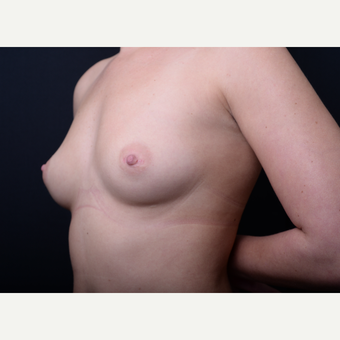25-34 year old woman treated with Breast Augmentation before 3384182