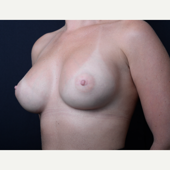 25-34 year old woman treated with Breast Augmentation after 3384182