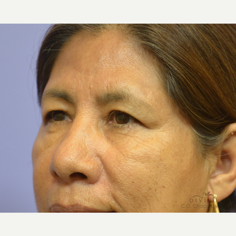 55-64 year old woman treated with Eyelid Surgery before 3329627