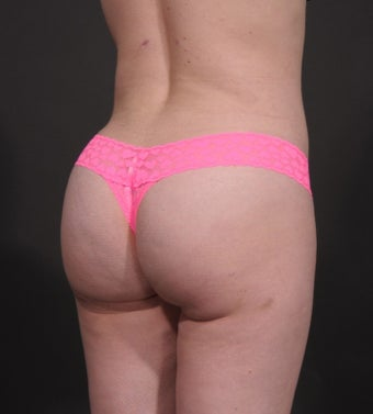 35-44 year old woman treated for Butt Augmentation