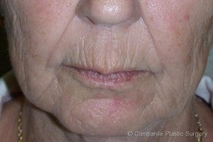 Juvederm® before 1093929