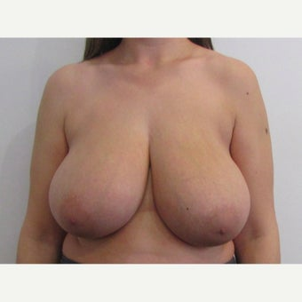 24 year old woman treated with anchor incision Breast Reduction before 2625937
