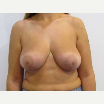 24 year old woman treated with anchor incision Breast Reduction after 2625937